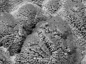 A deep-sea sponge or a close-up of oil residue? It may be the latter, but it looks a lot different to the viscous liquid you would normally expect to see. (100µm = one tenth of a millimetre) (08/21/2011)